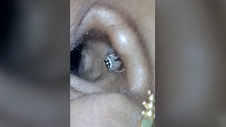 Horrific Moment Massive Spider Extracted From Woman's Ear