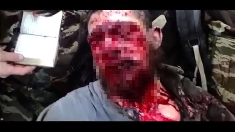 Man Takes His Last Breaths After Shotgun Blast To The Face