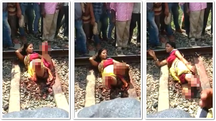 Woman Starts Posing After Getting Her Legs Cut Off By Train